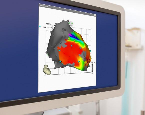 Elektrophysiologie / Katheterablation